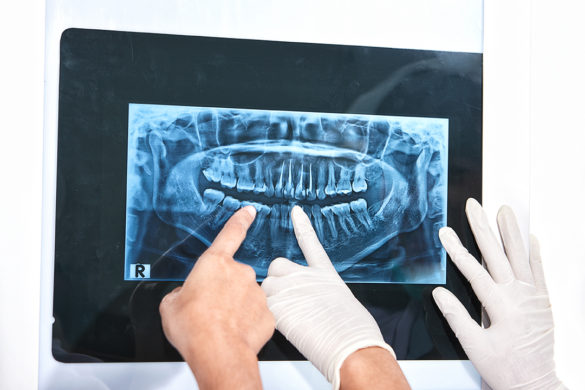 Dentist hand examining patient's teeth X Ray